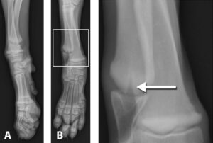 FIGURE 8. A 10-week-old, male Great Dane evaluated after an injury to his right thoracic limb. An incidental finding is presence of bilateral retained cartilage cores (RCC) in the distal ulna. Lateral (A) and craniocaudal (B) images of the distal right forelimb; the area outlined in the box in B is enlarged to highlight the presence of the RCC (arrow). Courtesy Dr. Dan Bucy, University of California–Davis Veterinary Medical Teaching Hospital