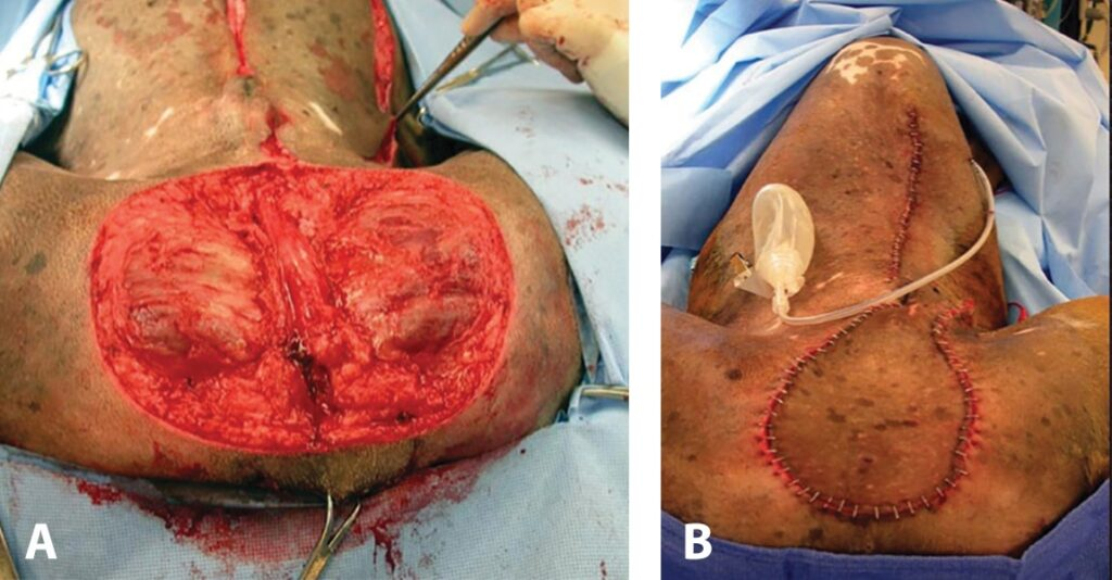 FIGURE 4. Large defect due to wide excision of a large scrotal mast cell tumor in a 10-year-old boxer (A). Left CSE flap reconstruction (B), with a Jackson-Pratt drain placed under the flap and donor area. Note that the drain exit is lateral to the closed donor region.