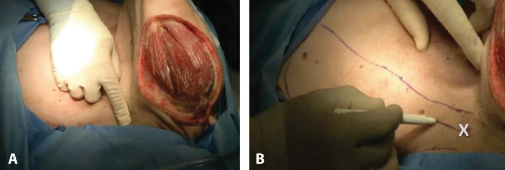 FIGURE 7. Large skin defect on caudal medial left thigh of a dog (A). The left limb is pulled upward, showing the medial thigh defect. Ink lines show proposed skin incision to create CSE flap (B); X is over the inguinal ring. The surgeon is drawing the course of the CSE vasculature in the middle of the left mammary chain.