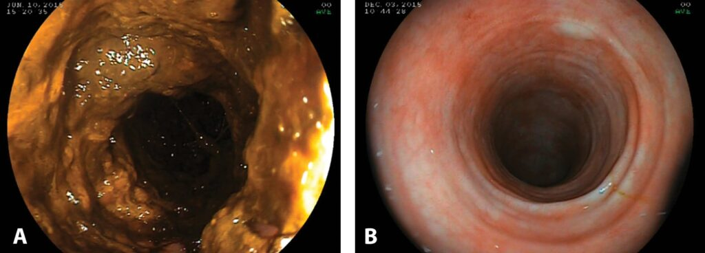 FIGURE 1. Colonoscopic images of 2 dogs demonstrating poor (A) and excellent (B) colon preparation. Poor colon preparation limits the ability to visualize the mucosal surface for lesions and the lumen for safe scope passage.