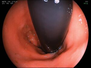 FIGURE 6. Retroflex colonoscopic view of the rectocolic junction. The insertion tube (black) should be rotated clockwise and counterclockwise to ensure the mucosa behind the endoscope is visualized.