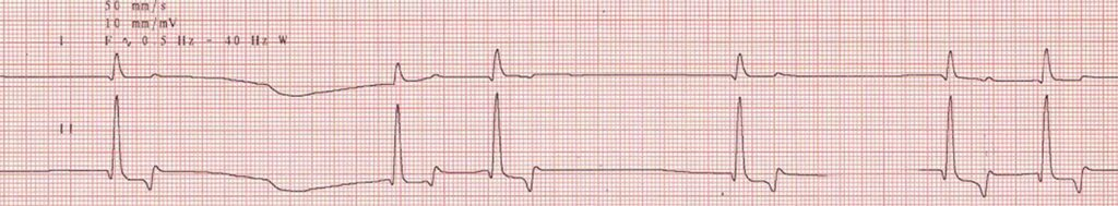 FIGURE 1. Electrocardiogram showing sinoventricular rhythm, with absent P waves and widened QRS complexes. Courtesy Gordon Peddle, VMD, Diplomate ACVIM (Cardiology)