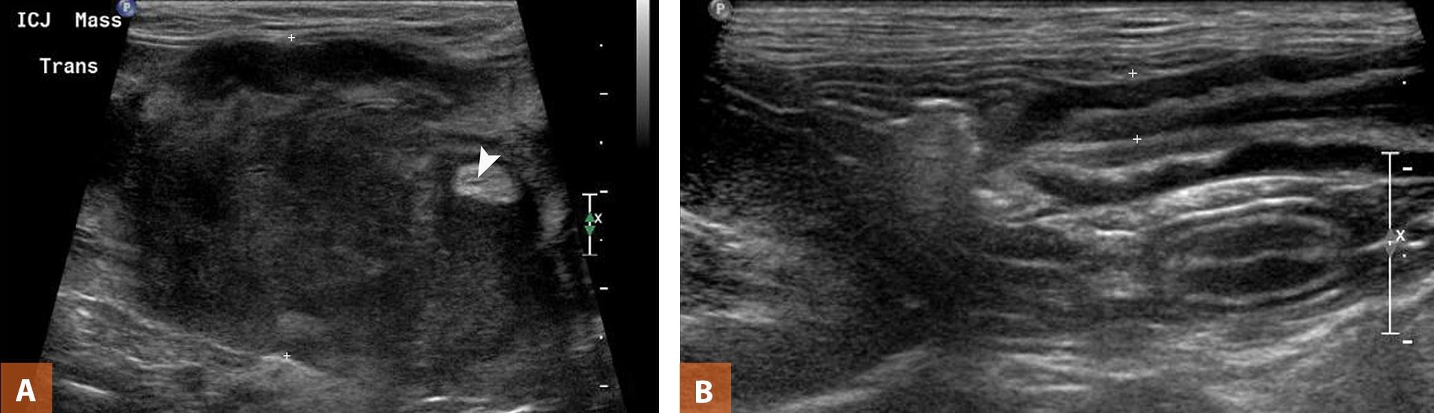 Ultrasonography Of The Gastrointestinal Tract Ileum Cecum Colon Today S Veterinary Practice