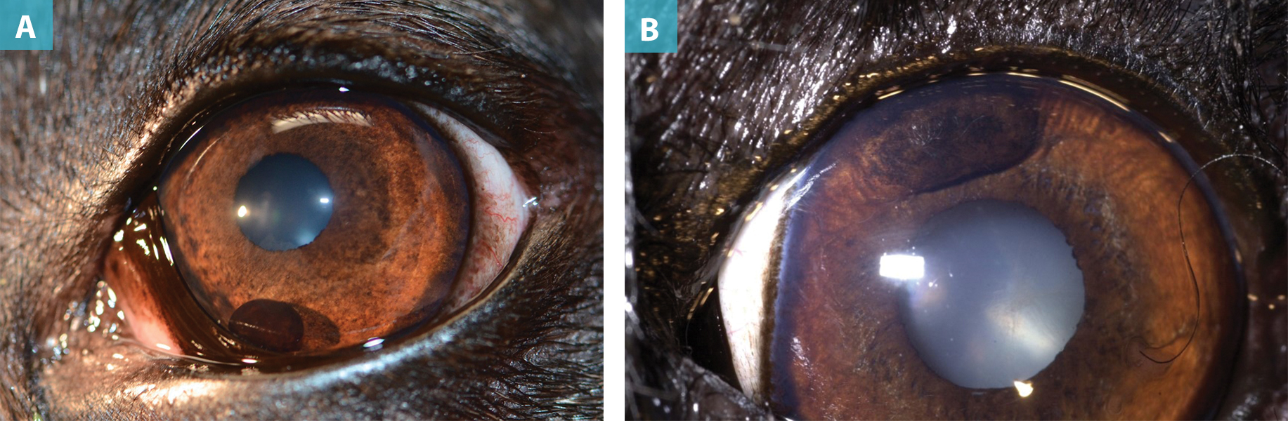 Clinical Approaches to Common Ocular Tumors   Today's