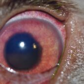 "FIGURE 1. Canine eye with blastomycosis-induced uveitis manifesting as a ""red eye"" with episcleral blood vessel injection and rubeosis irides. Note the hazy view of the iris due to corneal edema and aqueous flare."