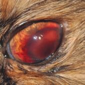 FIGURE 4. Large anterior chamber fibrin clot and hyphema hiding a miotic pupil.