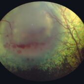 FIGURE 7. Fundic image of a canine eye with systemic blastomycosis and chorioretinitis showing an area of retinal detachment and retinal hemorrhages. Note how the retinal blood vessels elevate at the lesion margins and how the tapetum is hyporeflective owing to the subretinal cellular exudate.