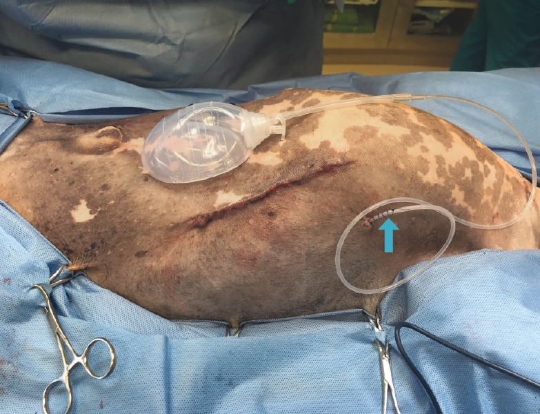 Surgical Drains: Indications, Types, and Complications