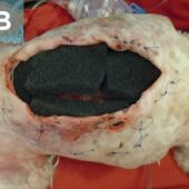Figure 8. Negative-pressure wound therapy provides a way to remove exudate from a wound without requiring wound closure. (B) Open cell foam placed in the wound bed.