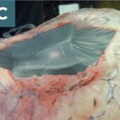 Figure 8. Negative-pressure wound therapy provides a way to remove exudate from a wound without requiring wound closure. (C) Occlusive dressing applied to create a seal and maintain a closed system.