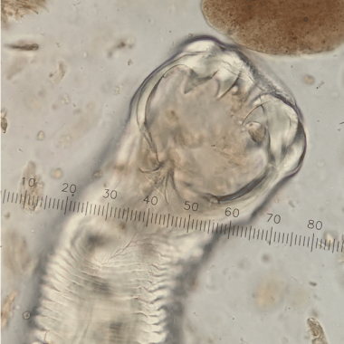 Figure 1A. Ancylostoma caninum hookworms as viewed on fecal flotation at x40 magnification. (A) Adult worm; note the 3 pairs of teeth.