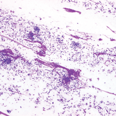 FIGURE 5. Mixed population (>200 microbes per high- power field/oil immersion) of predominantly rod-shaped  bacteria with cocci in cytology sample of the facial fold in an English bulldog.