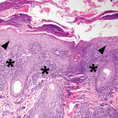 "FIGURE 6. (A) Irregular epidermal hyperplasia (arrowheads) with neutrophilic exocytosis and moderate to severe perifollicular to superficial lymphoplasmacytic ""band"" dermatitis (asterisks; magnification 10×)."