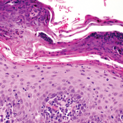 FIGURE 6. (B) Higher magnification (40×) of the epidermis reveals neutrophilic exocytosis, parakeratosis, intracorneal serocellular crusts containing degenerative neutrophils, and lymphoplasmacytic superficial dermatitis.