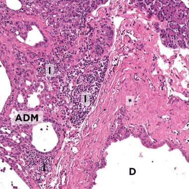 Figure 1. Histopathologic image of pancreatic tissue from cat with chronic pancreatitis, showing fibrosis (*) around a duct (D), inter- and intralobular lympho-plasmacellular infiltration (I), and acinar to ductal metaplasia (ADM). Hematoxylin and eosin staining; original magnification ×20. Photo Courtesy: Dr. Katja Steiger, Technical University of Munich, Germany