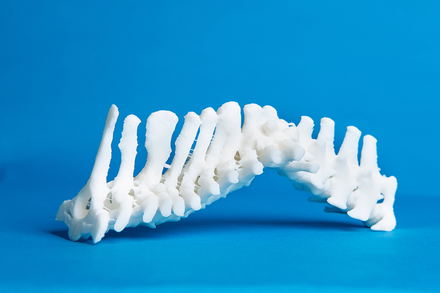 karlin 3d printed spine oscar