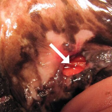 Figure 11. Oronasal fistula (arrow) in area of previously extracted tooth 204.