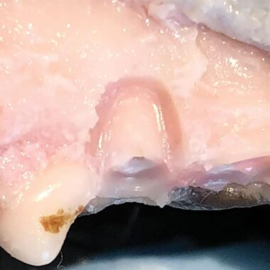 Figure 5. Dog cadaver, showing fractured mesial root of tooth 206 with buccal bone removed.