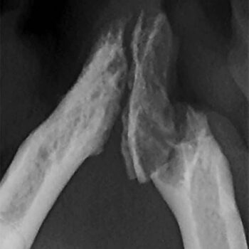 Figure 8. Radiograph showing fractured mandible after removal of tooth 304.
