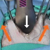 "Figure 3. (C) Lift the forceps ""up and out"" (i.e., away from the orbit; orange arrows) while an assistant provides gentle counterpressure on the globe (white arrow)."
