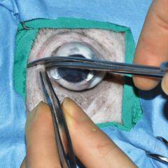Figure 4. (B) Cut the crushed tissue with Metzenbaum scissors.