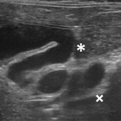 Figure 1. Ultrasound images of feline gallbladder abnormalities. (B) The cystic (*) and common (×) bile ducts are dilated and tortuous. This finding is not pathognomic for cholangitis and can be seen in normal cats.