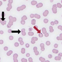 Figure 3. Blood film from a cat with cytauxzoonosis (magnification ×100, modified Wright-Giemsa stain). Many intraerythrocytic C. felis merozites, approximately 2 to 3 µm in diameter, can be seen (black arrows). The merozoites are often observed in the classic signet ring shape with a small (<1 µm), peripherally placed, deep purple nucleus and pale blue cytoplasm extending in crescent formation away from the nucleus. The red arrow denotes a Howell-Jolly body on the surface of a red blood cell for size comparison. Courtesy Dr. Erin Burton, DVM, MS, DACVP. University of Minnesota.