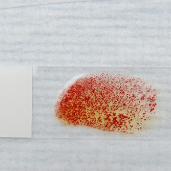 FIGURE 6. Strong positive in-saline slide agglutination in blood from a jaundiced dog with IMHA; red speckles persist despite addition of saline.