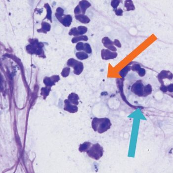 Figure 5. Skin cytology from a dog with superficial pyoderma demonstrating degenerate neutrophils and intracellular (blue arrow) and extracellular (orange arrow) cocci bacteria.