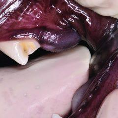 Figure 3. (B) Infraerupted left maxillary first molar (209).