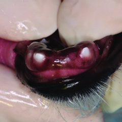 Figure 5. Infraerupted right and left mandibular third incisors (403 and 303) and unerupted right and left mandibular first and second incisors (401, 402, 301, 302).