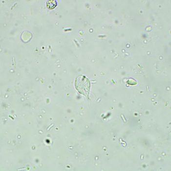 Figure 2. Giardia trophozoite (600×). Image courtesy Yoko Nagamori.