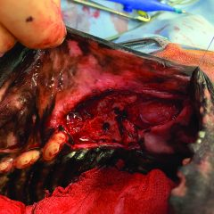 Figure 3. (B) Intraoperative image of a dog with oral malignant melanoma of the left labial mucosa located dorsal to the first molar. The tumor was excised with 2-cm margins via a rim maxillectomy. Courtesy of Josep Aisa, DVM, DECVS, University of Tennessee.