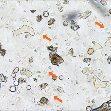 Figure 1. Giardia duodenalis cysts (arrows) recovered via centrifugal fecal flotation with zinc sulfate; hookworm egg (asterisk) for scale.