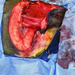 Figure 2. (D) Intraoperative view of defect created by removal of tumor plus radical margins.