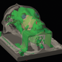 Figure 1. (D) 3-D model of a patient positioned in a thermoplastic mask and bite plate.