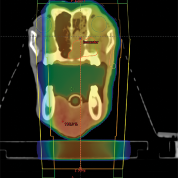 Figure 3. (A) Dose distribution of a nasal tumor planned with a fixed multileaf collimator 3-D plan. The areas of red and yellow represent areas of high radiation doses (greater than 95% of the prescription). The areas of blue represent areas of low radiation dose (less than 20% of prescription).