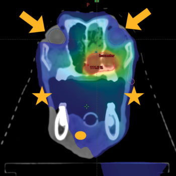 Figure 3. (B) Dose distribution of the same nasal tumor planned with volumetric modulated arc therapy. Red and blue areas represent areas of high and low dose as in (A). Note the sparing of normal tissues such as the tongue (yellow oval), eyes (yellow arrows), and lips (yellow stars).