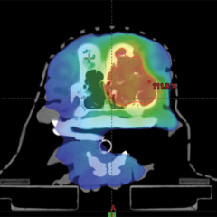 Figure 4. (A) Computed tomography scan and color wash showing volumetric modulated arc therapy dose distribution in a patient treated with 15 Gy × 1 fraction stereotactic radiation therapy (SRT) for a nasal tumor. Reds indicate tissues receiving 95% of the prescription; greens, 50% of the prescription; and blues, less than 20% of the prescription.