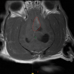 Figure 6. (A) T1 + contrast dorsal plane brain magnetic resonance imaging (MRI) scan of a dog with suspected ependymal tumor of the lateral ventricle (red circle).