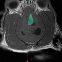 Figure 6. (B) Radiation therapy color wash at same plane as (A). Patient was prescribed 8 Gy × 3 fractions of stereotactic radiation therapy (SRT) on consecutive weekdays. Blue-green area is receiving at least 95% of the radiation prescription. Note how coverage of the surface of the mass (red circle) is much better than the case in Figure 3. Smaller tumors can receive a more homogenous dose than larger tumors, as it is easier to avoid normal tissues.