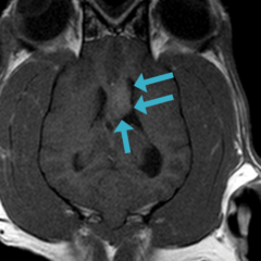 Figure 6. (C) T1 + contrast dorsal plane brain MRI of same dog 3 months post-SRT, showing significant shrinkage of the mass (blue arrows) but not complete remission.