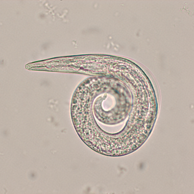 """Figure 1. First-stage larva (L1) of Aelurostrongylus abstrusus. Note the S-shape or """"kink"""" in the tail with dorsal spine."""